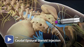 what is steroid injection