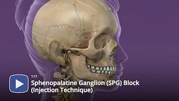 Pain Management Videos Texas Pain Physicians